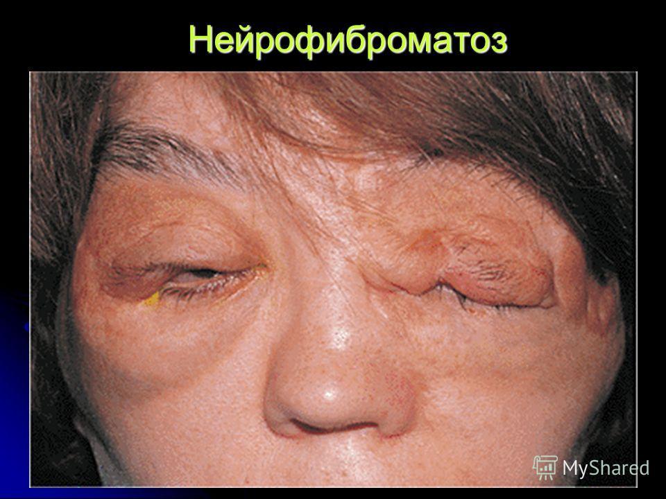Нейрофиброматоз