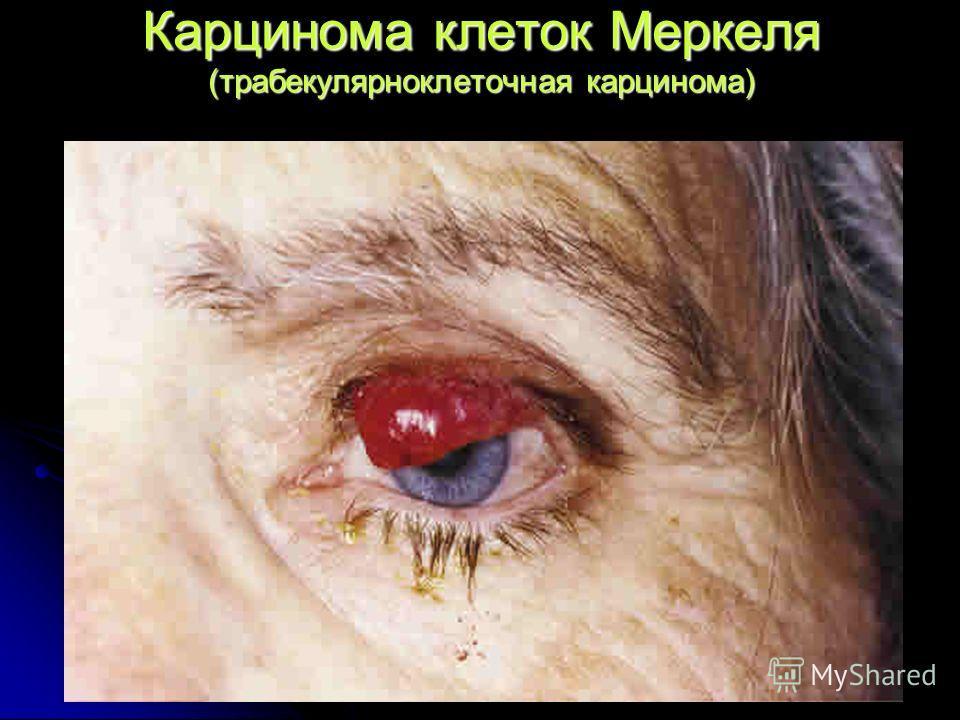 Карцинома клеток Меркеля (трабекулярноклеточная карцинома)
