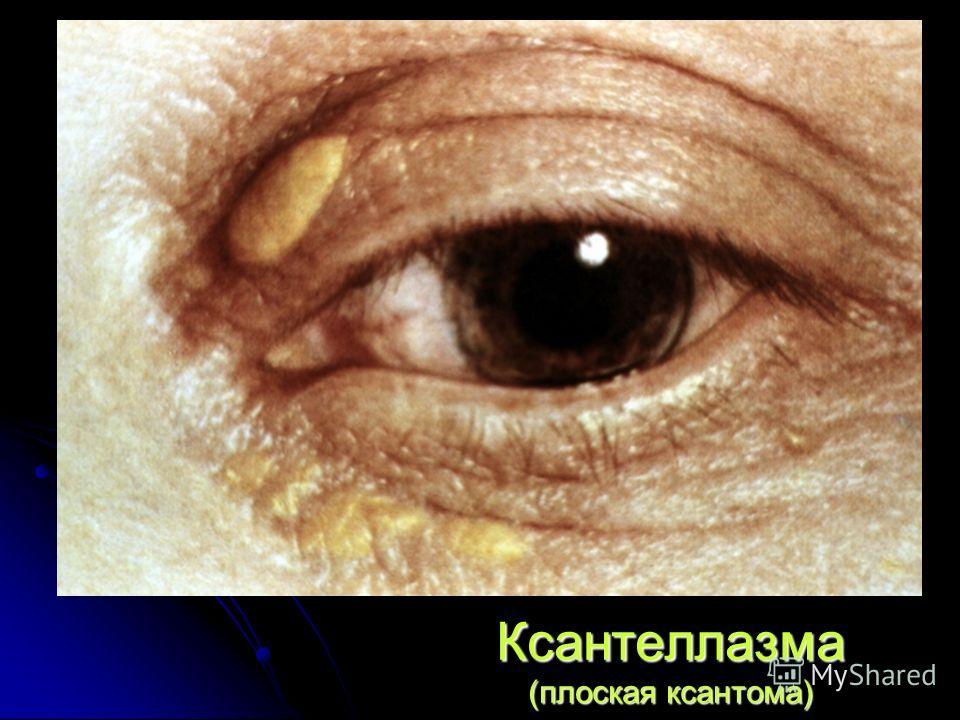 Ксантеллазма (плоская ксантома)