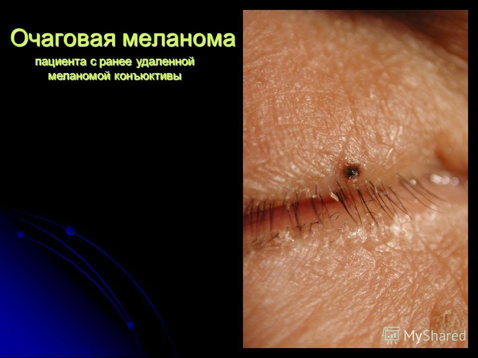 Очаговая меланома пациента с ранее удаленной меланомой конъюктивы