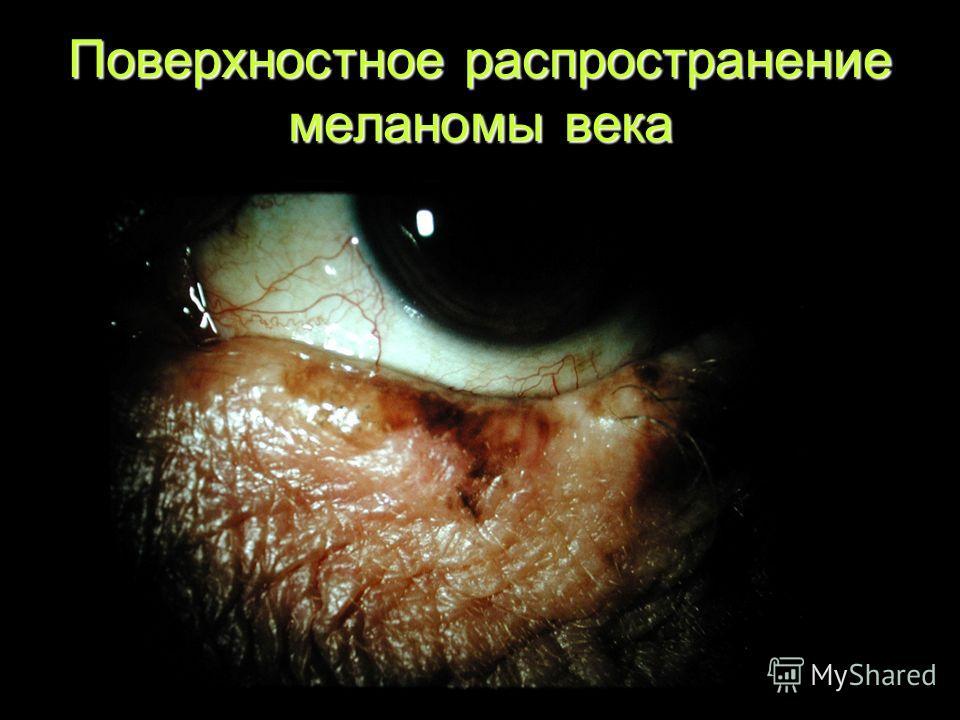 Поверхностное распространение меланомы века