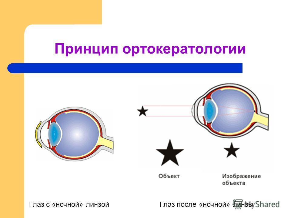 Принцип ортокератологии Глаз с «ночной» линзойГлаз после «ночной» линзы