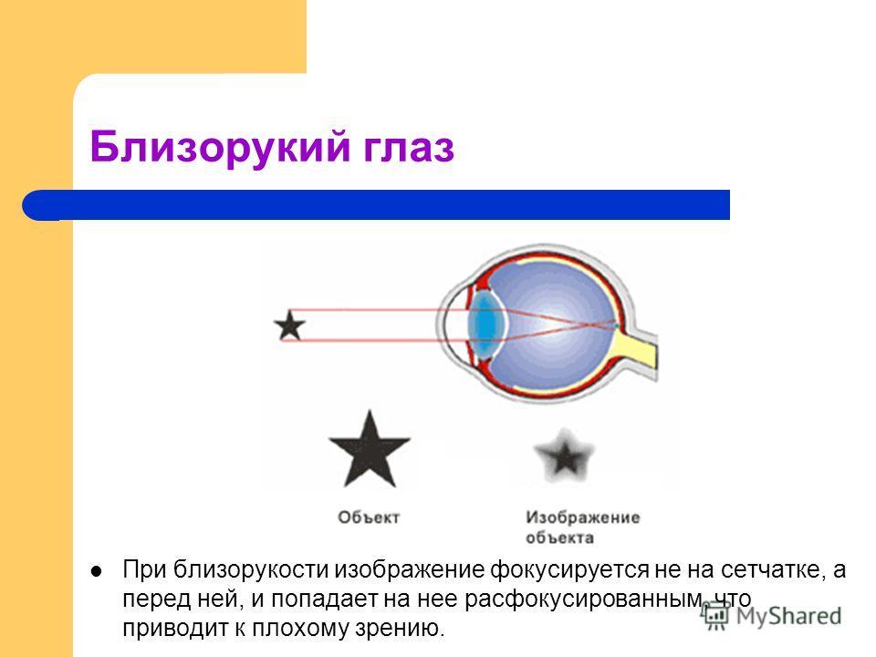 Близорукий глаз При близорукости изображение фокусируется не на сетчатке, а перед ней, и попадает на нее расфокусированным, что приводит к плохому зрению.