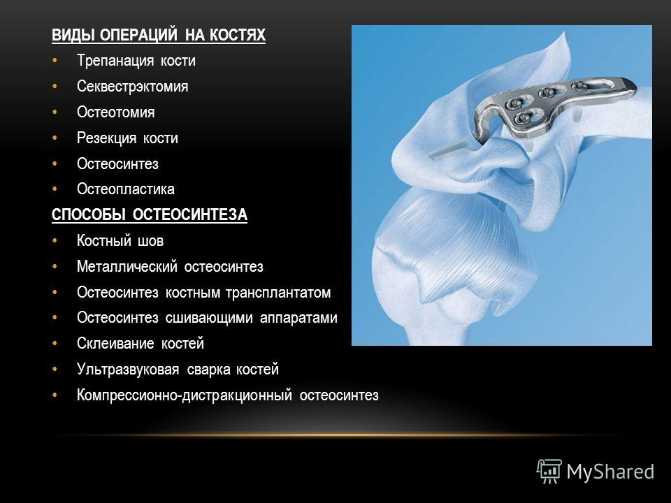 ВИДЫ ОПЕРАЦИЙ НА КОСТЯХ Трепанация кости Секвестрэктомия Остеотомия Резекция кости Остеосинтез Остеопластика СПОСОБЫ ОСТЕОСИНТЕЗА Костный шов Металлический остеосинтез Остеосинтез костным трансплантатом Остеосинтез сшивающими аппаратами Склеивание ко