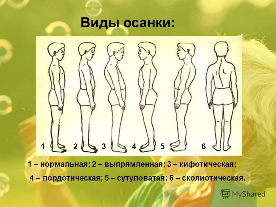Виды осанки: 1 – нормальная; 2 – выпрямленная; 3 – кифотическая; 4 – лордотическая; 5 – сутуловатая; 6 – сколиотическая. 123456