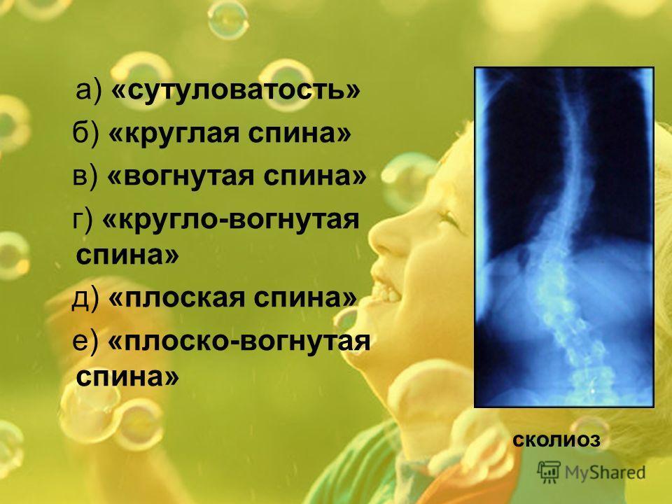 а) «сутуловатость» б) «круглая спина» в) «вогнутая спина» г) «кругло-вогнутая спина» д) «плоская спина» е) «плоско-вогнутая спина» сколиоз