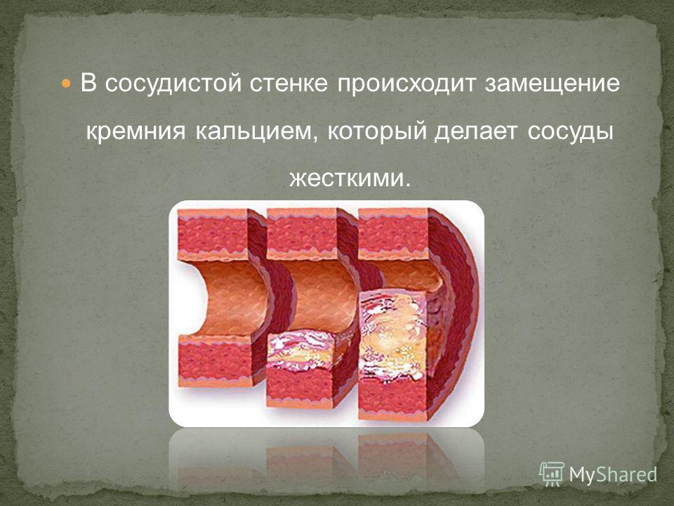 В сосудистой стенке происходит замещение кремния кальцием, который делает сосуды жесткими.