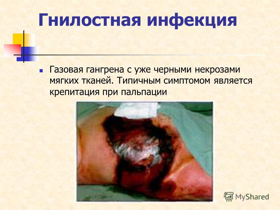 Гнилостная инфекция Газовая гангрена с уже черными некрозами мягких тканей. Типичным симптомом является крепитация при пальпации