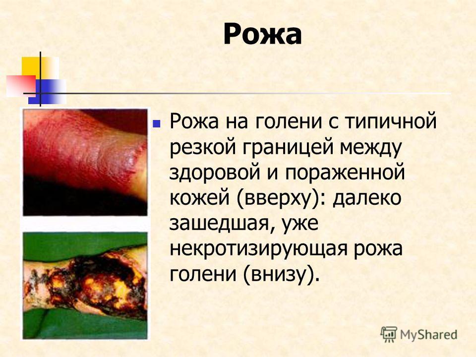 Рожа Рожа на голени с типичной резкой границей между здоровой и пораженной кожей (вверху): далеко зашедшая, уже некротизирующая рожа голени (внизу).