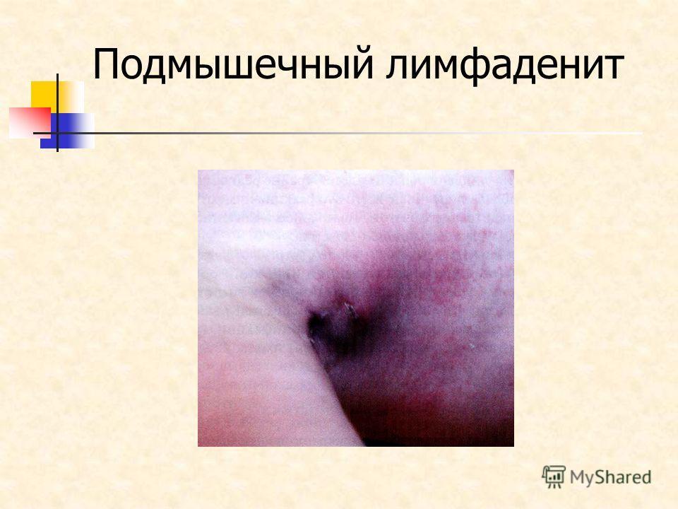 Подмышечный лимфаденит