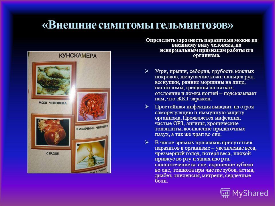 «Внешние симптомы гельминтозов» Определить заразность паразитами можно по внешнему виду человека, по ненормальным признакам работы его организма. Угри, прыши, себория, грубость кожных покровов, шелушение кожи пальцев рук, веснушки, ранние морщины на