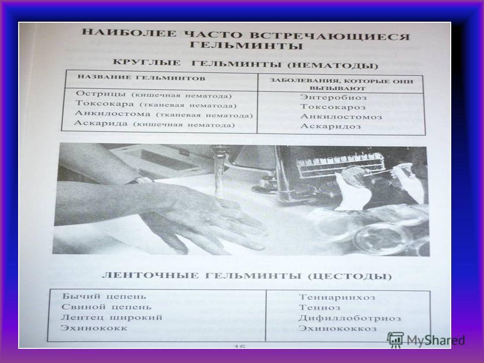 «Паразитов разделяют» Облигатные (обязательные) Факультативные (необязательные) Временные (паразиты попадают в организм хозяина только для питания) Стационарные (связаны с хозяином большую жизнь) Эктопаразиты (живут только на теле хозяина) Эндопарази