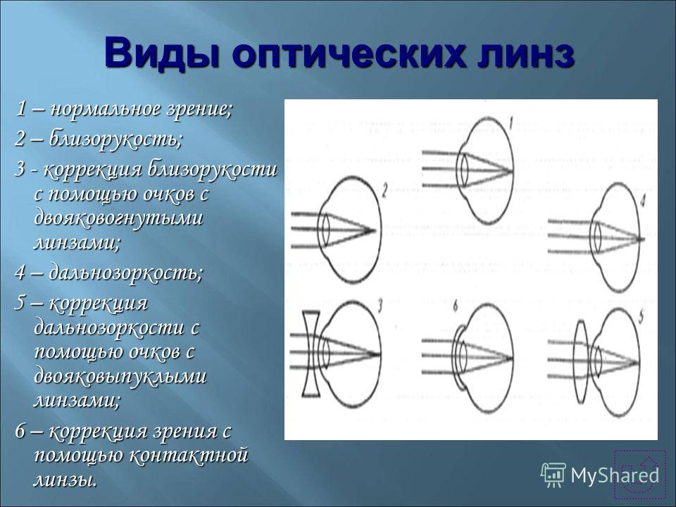 Виды оптических линз 1 – нормальное зрение; 1 – нормальное зрение; 2 – близорукость; 2 – близорукость; 3 - коррекция близорукости с помощью очков с двояковогнутыми линзами; 3 - коррекция близорукости с помощью очков с двояковогнутыми линзами; 4 – дал