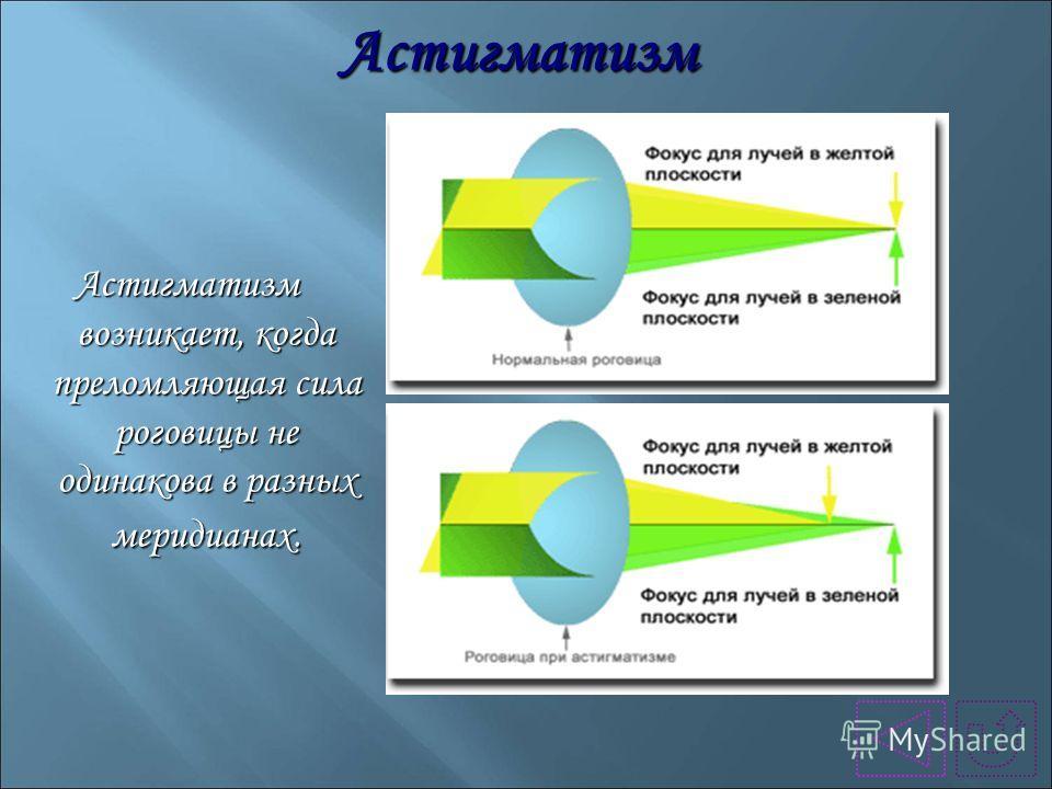 Астигматизм Астигматизм возникает, когда преломляющая сила роговицы не одинакова в разных меридианах.
