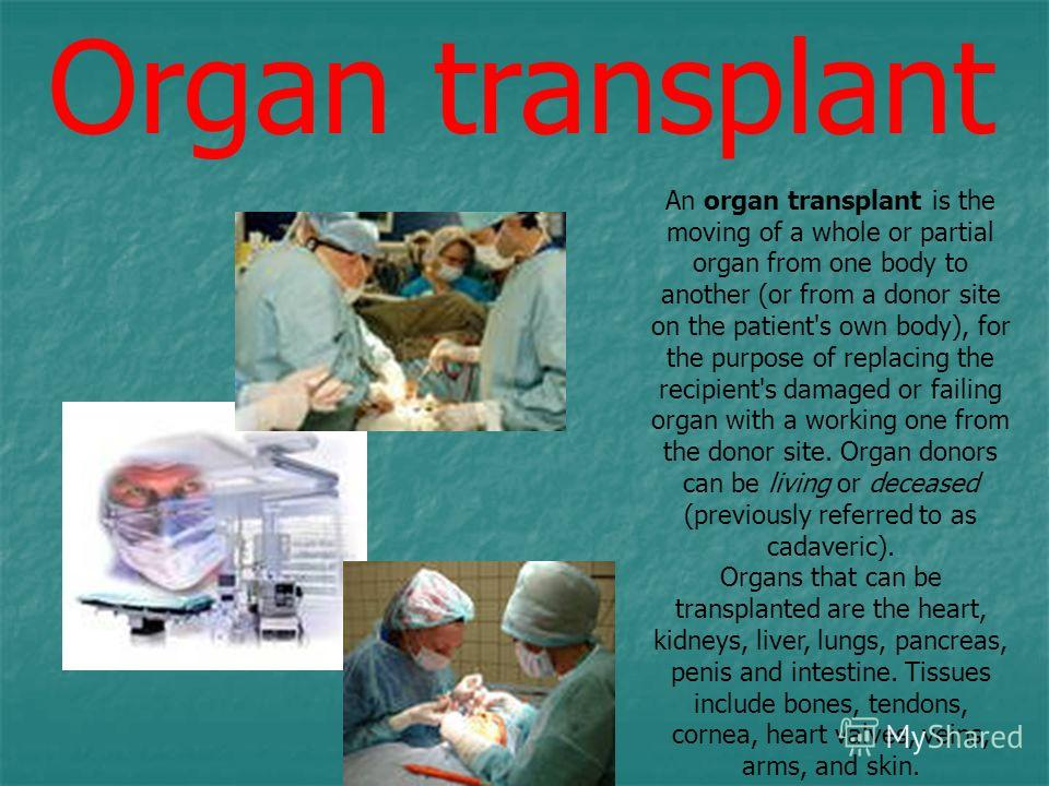 An organ transplant is the moving of a whole or partial organ from one body to another (or from a donor site on the patient's own body), for the purpose of replacing the recipient's damaged or failing organ with a working one from the donor site. Org