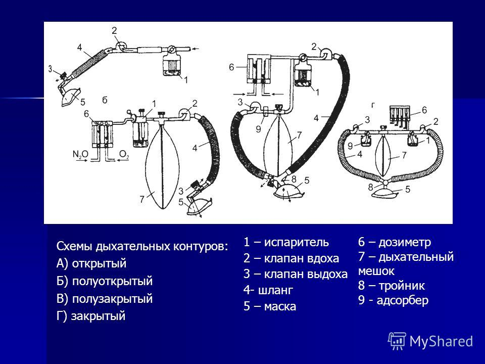 Схемы дыхательных контуров: А) открытый Б) полуоткрытый В) полузакрытый Г) закрытый 1 – испаритель 2 – клапан вдоха 3 – клапан выдоха 4- шланг 5 – маска 6 – дозиметр 7 – дыхательный мешок 8 – тройник 9 - адсорбер