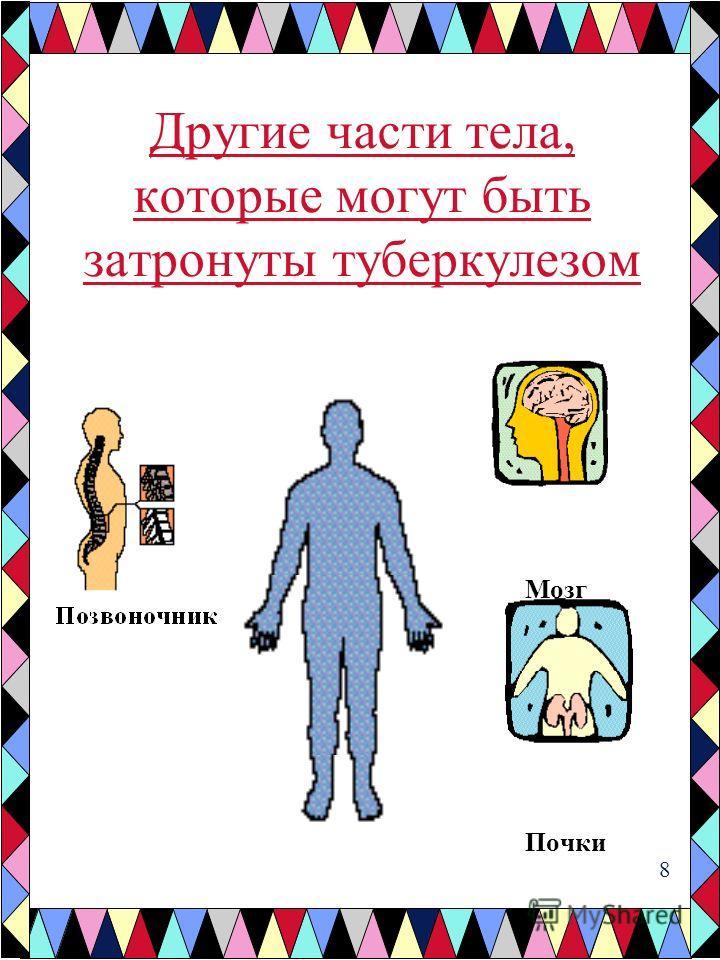 Другие части тела, которые могут быть затронуты туберкулезом Мозг Почки 8