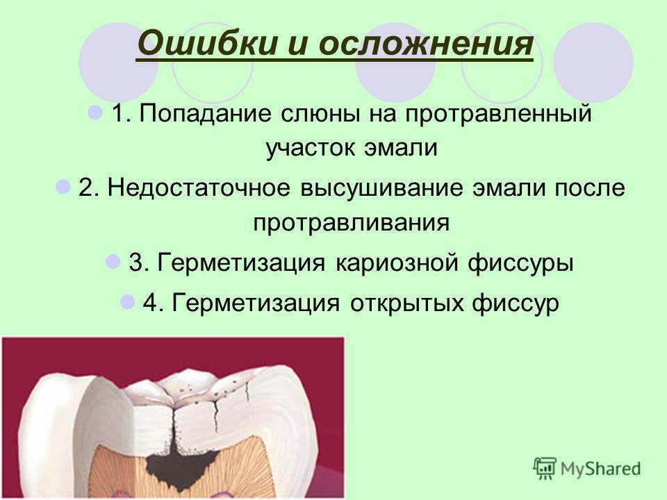 Ошибки и осложнения 1. Попадание слюны на протравленный участок эмали 2. Недостаточное высушивание эмали после протравливания 3. Герметизация кариозной фиссуры 4. Герметизация открытых фиссур