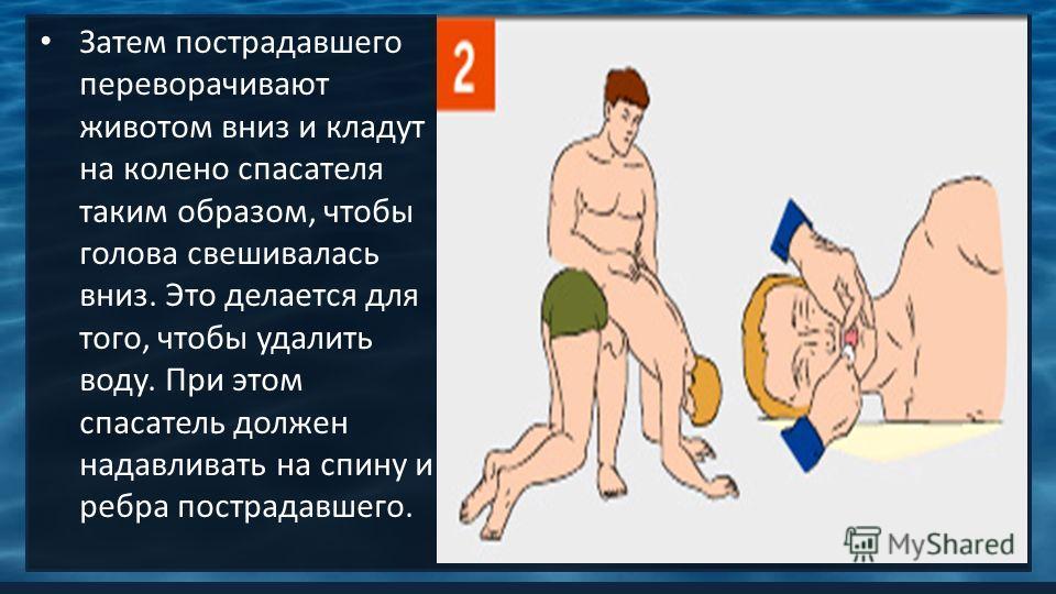 Затем пострадавшего переворачивают животом вниз и кладут на колено спасателя таким образом, чтобы голова свешивалась вниз. Это делается для того, чтобы удалить воду. При этом спасатель должен надавливать на спину и ребра пострадавшего.