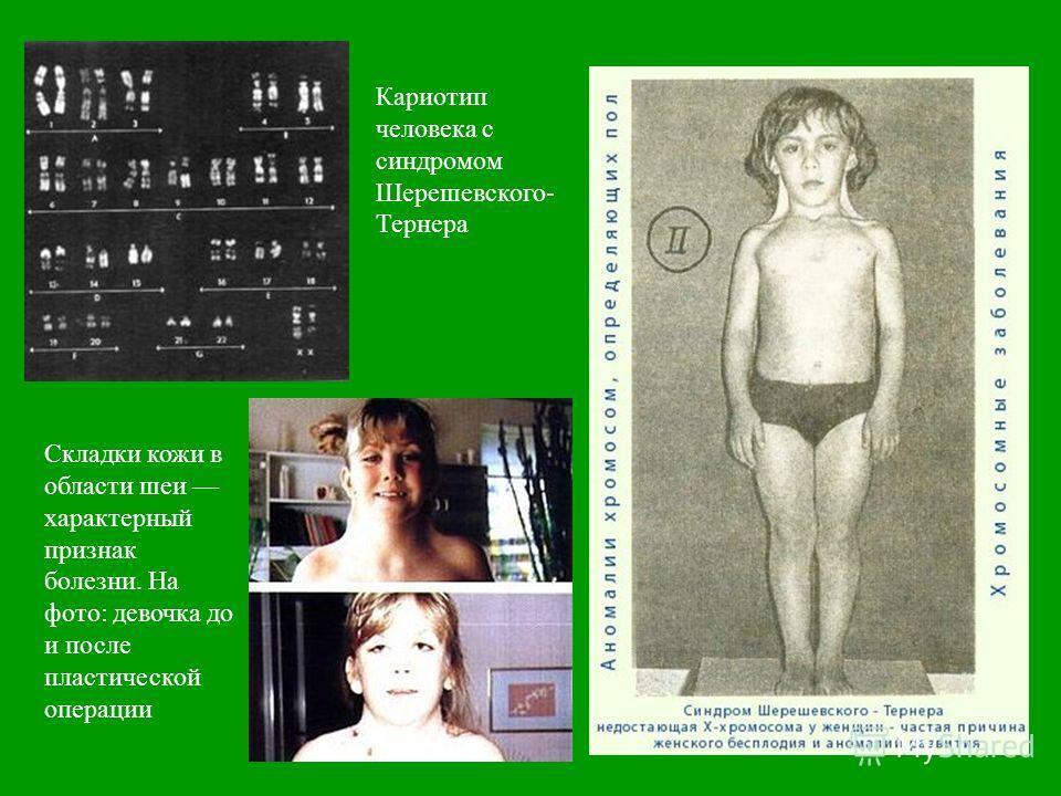Кариотип человека с синдромом Шерешевского - Тернера Складки кожи в области шеи характерный признак болезни. На фото : девочка до и после пластической операции