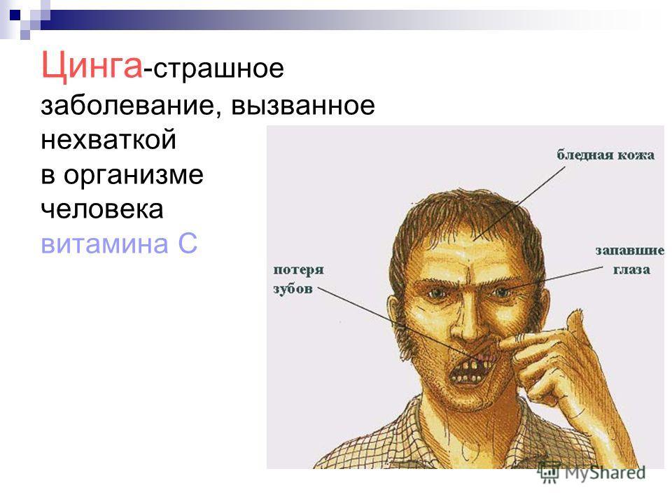 Цинга -страшное заболевание, вызванное нехваткой в организме человека витамина С