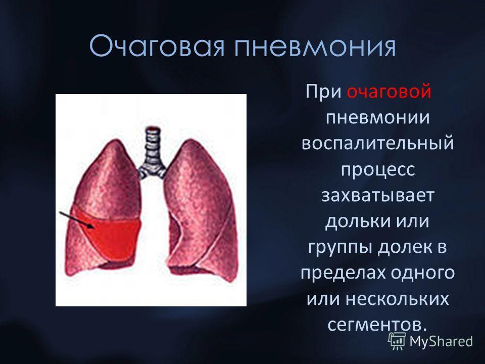 Очаговая пневмония При очаговой пневмонии воспалительный процесс захватывает дольки или группы долек в пределах одного или нескольких сегментов.