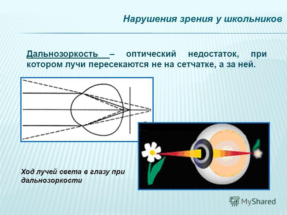 Нарушения зрения у школьников Дальнозоркость – оптический недостаток, при котором лучи пересекаются не на сетчатке, а за ней. Ход лучей света в глазу при дальнозоркости