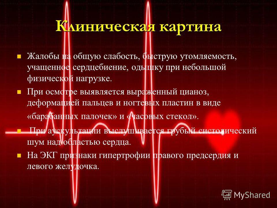 Клиническая картина Жалобы на общую слабость, быструю утомляемость, учащенное сердцебиение, одышку при небольшой физической нагрузке. При осмотре выявляется выраженный цианоз, деформацией пальцев и ногтевых пластин в виде «барабанных палочек» и «часо