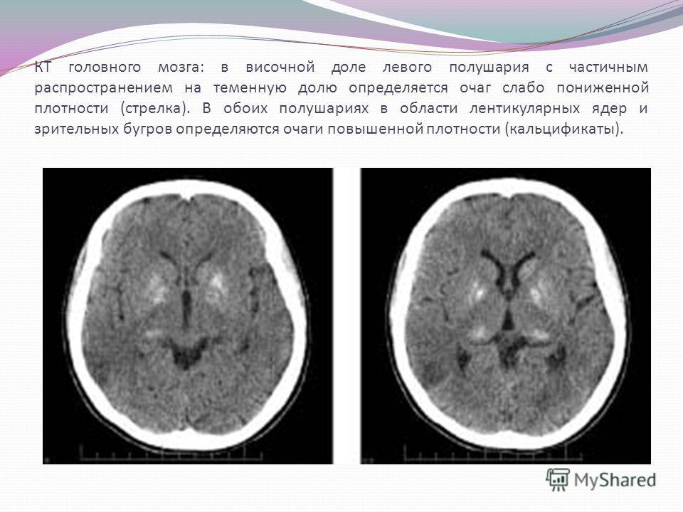 КТ головного мозга: в височной доле левого полушария с частичным распространением на теменную долю определяется очаг слабо пониженной плотности (стрелка). В обоих полушариях в области лентикулярных ядер и зрительных бугров определяются очаги повышенн