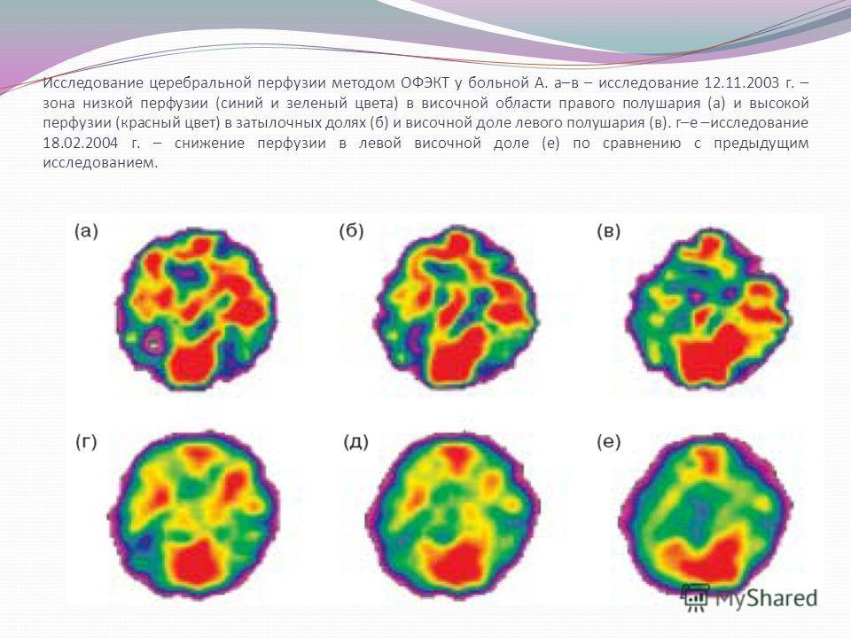 Исследование церебральной перфузии методом ОФЭКТ у больной А. а–в – исследование 12.11.2003 г. – зона низкой перфузии (синий и зеленый цвета) в височной области правого полушария (а) и высокой перфузии (красный цвет) в затылочных долях (б) и височной