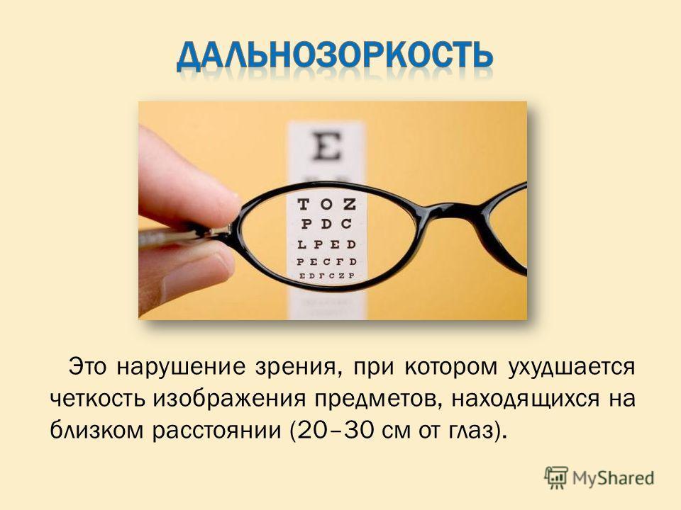 Это нарушение зрения, при котором ухудшается четкость изображения предметов, находящихся на близком расстоянии (20–30 см от глаз).