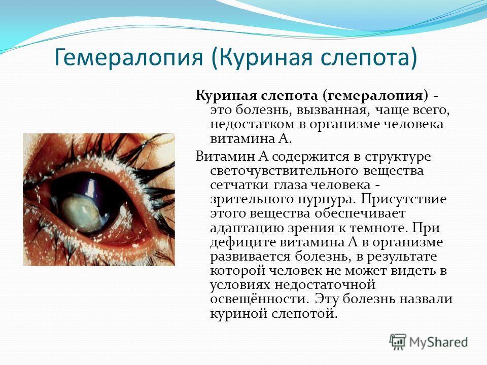 Гемералопия (Куриная слепота) Куриная слепота (гемералопия) - это болезнь, вызванная, чаще всего, недостатком в организме человека витамина А. Витамин А содержится в структуре светочувствительного вещества сетчатки глаза человека - зрительного пурпур