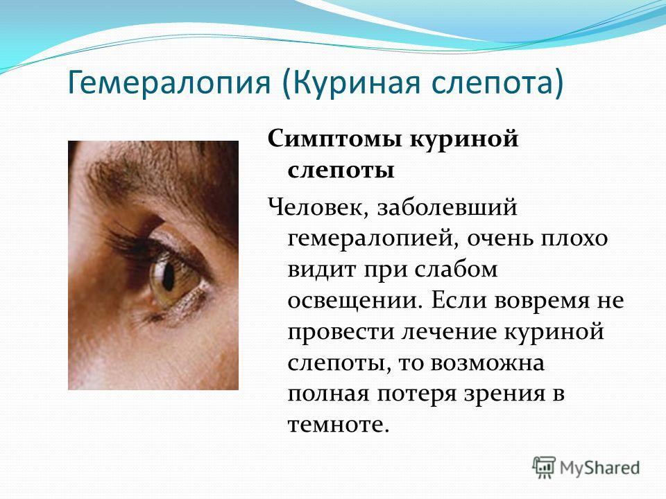 Гемералопия (Куриная слепота) Симптомы куриной слепоты Человек, заболевший гемералопией, очень плохо видит при слабом освещении. Если вовремя не провести лечение куриной слепоты, то возможна полная потеря зрения в темноте.