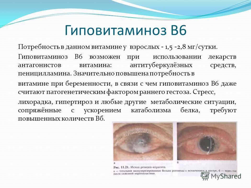 Гиповитаминоз В6 Потребность в данном витамине у взрослых - 1,5 -2,8 мг/сутки. Гиповитаминоз В6 возможен при использовании лекарств антагонистов витамина: антитуберкулёзных средств, пеницилламина. Значительно повышена потребность в витамине при берем