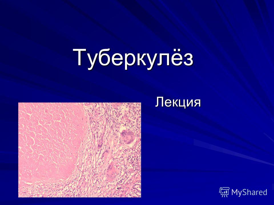 Туберкулёз Лекция
