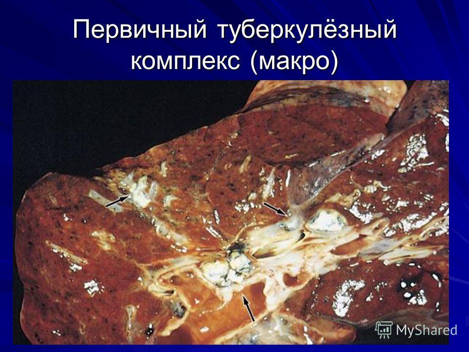 Первичный туберкулёзный комплекс (макро)