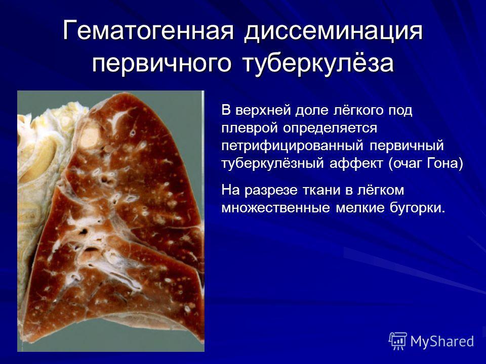 Гематогенная диссеминация первичного туберкулёза В верхней доле лёгкого под плеврой определяется петрифицированный первичный туберкулёзный аффект (очаг Гона) На разрезе ткани в лёгком множественные мелкие бугорки.
