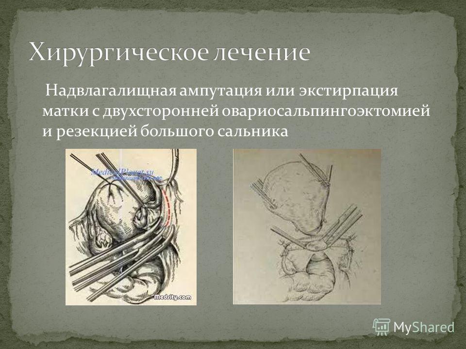 Надвлагалищная ампутация или экстирпация матки с двухсторонней овариосальпингоэктомией и резекцией большого сальника