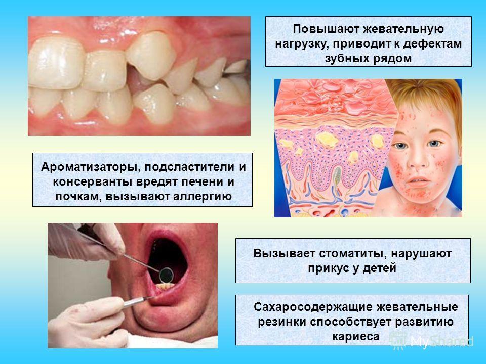 Повышают жевательную нагрузку, приводит к дефектам зубных рядом Сахаросодержащие жевательные резинки способствует развитию кариеса Ароматизаторы, подсластители и консерванты вредят печени и почкам, вызывают аллергию Вызывает стоматиты, нарушают прику