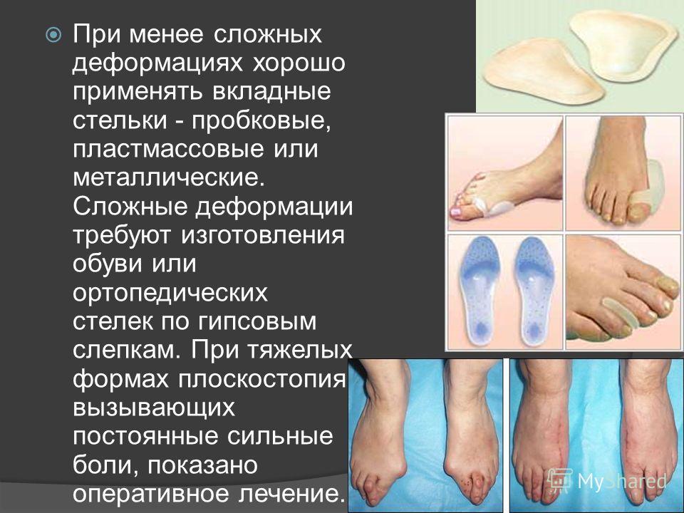 При менее сложных деформациях хорошо применять вкладные стельки - пробковые, пластмассовые или металлические. Сложные деформации требуют изготовления обуви или ортопедических стелек по гипсовым слепкам. При тяжелых формах плоскостопия, вызывающих пос
