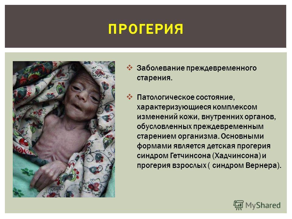 ПРОГЕРИЯ Заболевание преждевременного старения. Патологическое состояние, характеризующиеся комплексом изменений кожи, внутренних органов, обусловленных преждевременным старением организма. Основными формами является детская прогерия синдром Гетчинсо