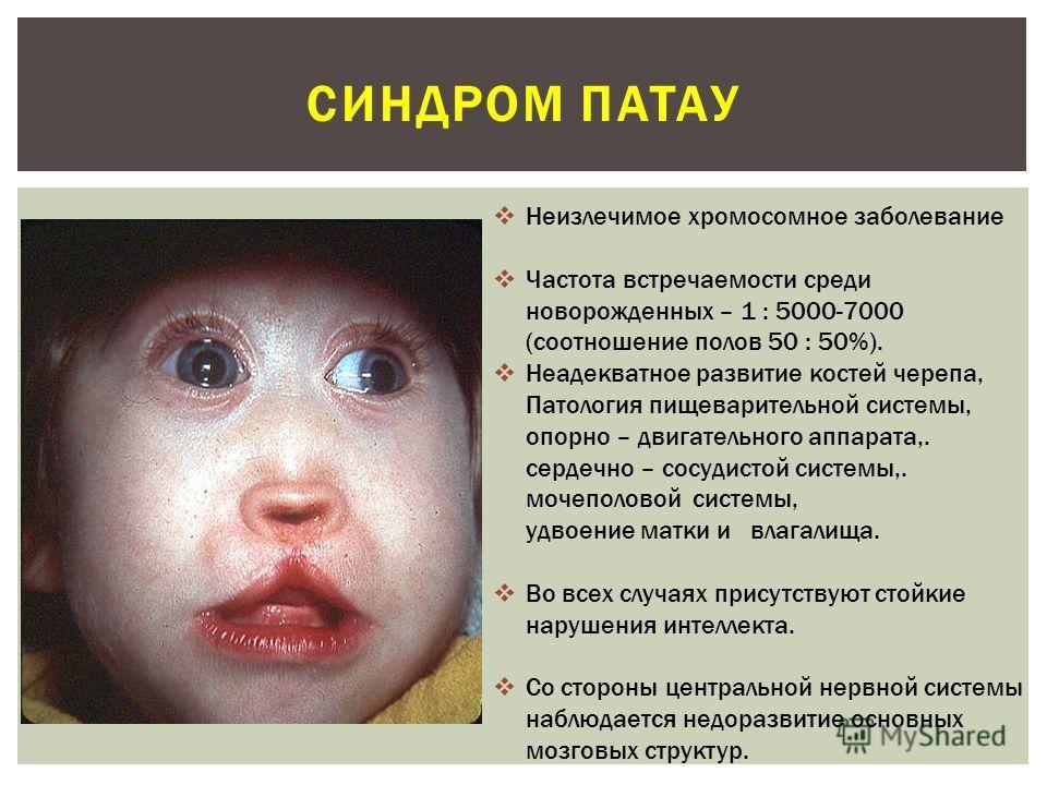 Синдром Гунтера фото