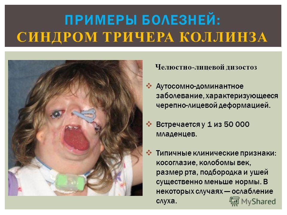 ПРИМЕРЫ БОЛЕЗНЕЙ: СИНДРОМ ТРИЧЕРА КОЛЛИНЗА Челюстно-лицевой дизостоз Аутосомно-доминантное заболевание, характеризующееся черепно-лицевой деформацией. Встречается у 1 из 50 000 младенцев. Типичные клинические признаки: косоглазие, колобомы век, разме