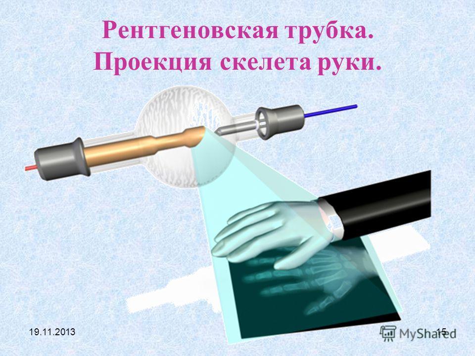 19.11.201314 В теле человека рентгеновские лучи сильнее всего поглощаются в костях, плотность которых относительно высока и в которых много атомов кальция. При прохождение лучей через кости интенсивность излучений уменьшается вдвое через каждые 1,2 с