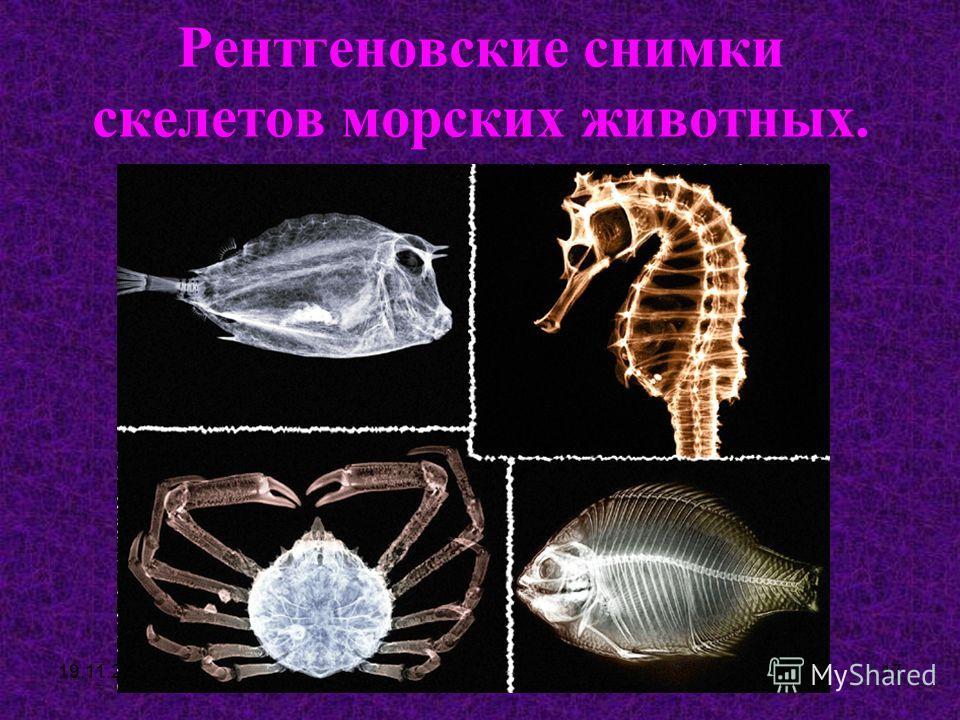 19.11.201316 Рентгеновские снимки конечностей человека.