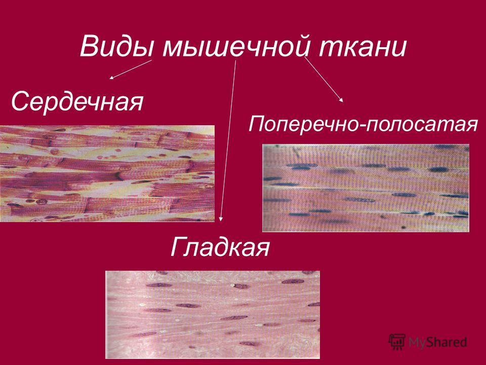 Виды мышечной ткани Сердечная Гладкая Поперечно-полосатая