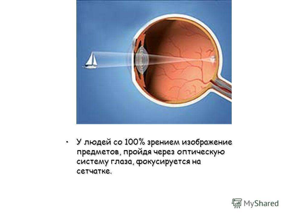 У людей со 100% зрением изображение предметов, пройдя через оптическую систему глаза, фокусируется на сетчатке.У людей со 100% зрением изображение предметов, пройдя через оптическую систему глаза, фокусируется на сетчатке.