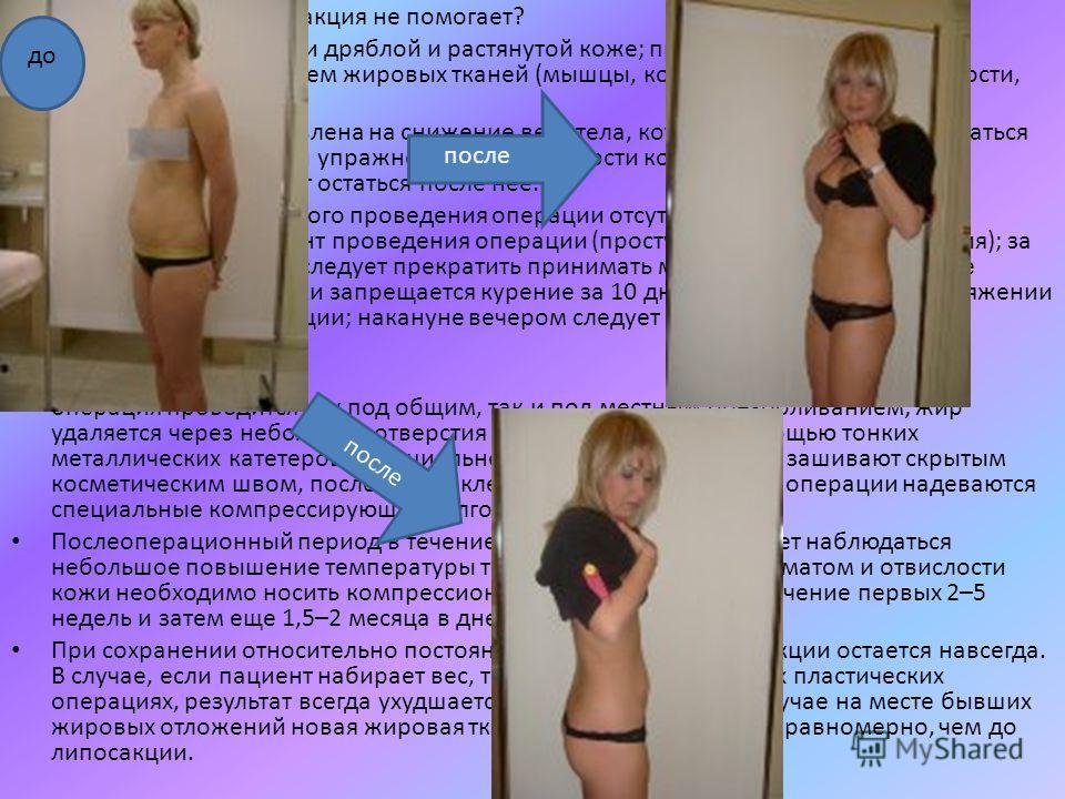 В каких случаях липосакция не помогает? при общем ожирении; при дряблой и растянутой коже; при нарушениях фигуры, не связанных с изменением жировых тканей (мышцы, кости, органы брюшной полости, железы). Липосакция не направлена на снижение веса тела,