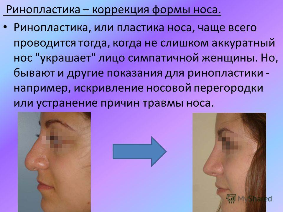 Ринопластика – коррекция формы носа. Ринопластика, или пластика носа, чаще всего проводится тогда, когда не слишком аккуратный нос