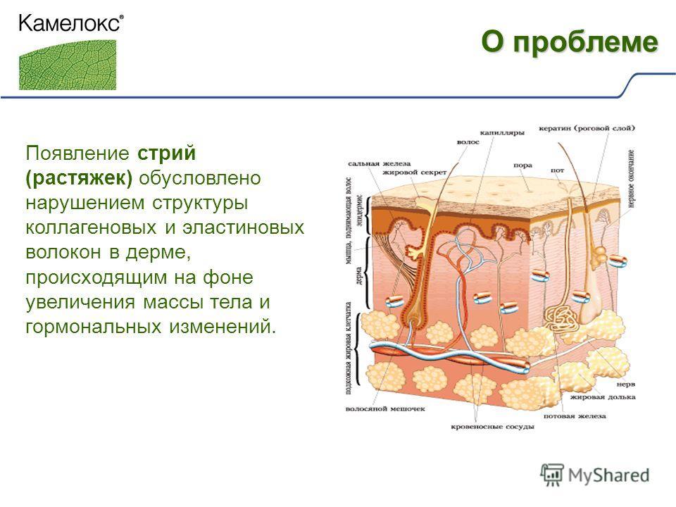 Появление стрий (растяжек) обусловлено нарушением структуры коллагеновых и эластиновых волокон в дерме, происходящим на фоне увеличения массы тела и гормональных изменений. О проблеме